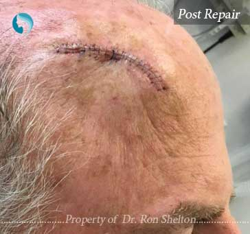 Post Mohs Repair