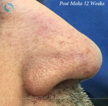 Post Mohs 12 Weeks
