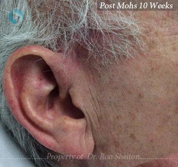 Post Mohs 10 Weeks