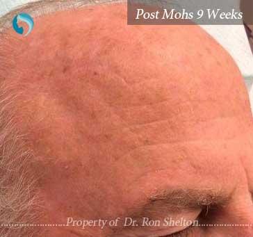 Post Mohs 9 Weeks
