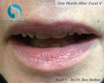 This patient has a common venous lake, a blood vessel pooling of venous blood that's benign in their lower lip. It failed treatment with the Vbeam laser and needed a deeper laser, which we have, called the Excel V laser. This result is after one treatment 1000% resolution, no scarring