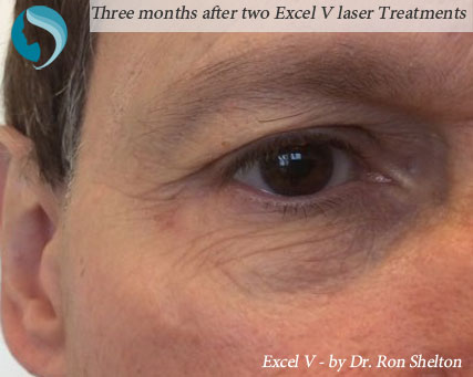 Excel V can treat the bulging veins of the periorbital area. Above patient had 2 treatments, and the photo is 3 months after the second.