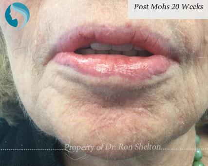 Post Mohs 20 Weeks