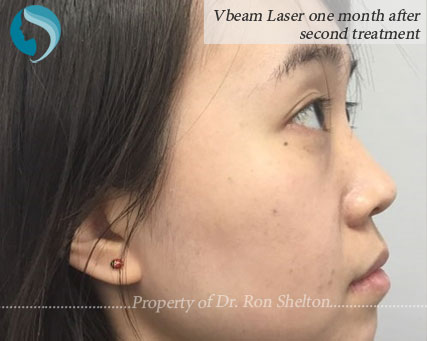VBeam laser 1 month after 2nd treatment for facial rosasea