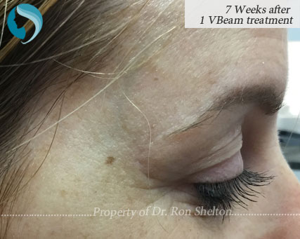 7 Weeks after 1 VBeam Treatment