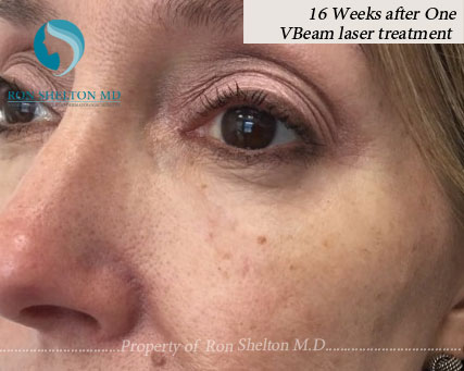 16 Weeks After One VBeam Laser Treatment
