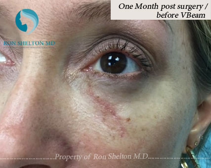 One Month After surgery and Before VBeam