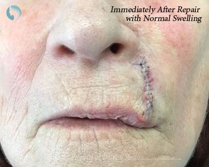 Immediately after repair with normal swelling