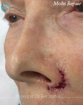 Mohs Repair on nose