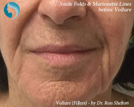 Smile folds before vollure filler
