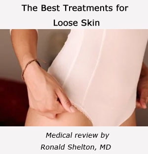 Article: Best treatments for loose skin