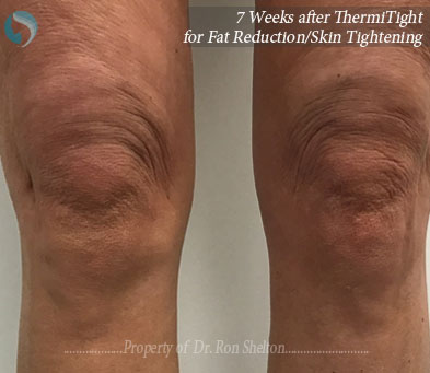 7 weeks after ThermiTight for fact reduction and skin tightening