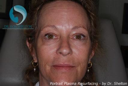 After Portrait Plasma Resurfacing