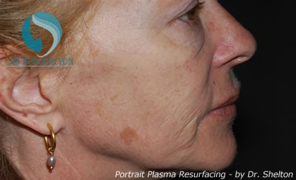 Before Portrait Plasma Resurfacing