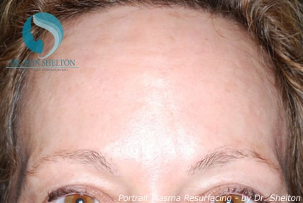 After Portrait Plasma Resurfacing for Acne Scars