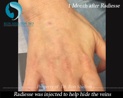 1 Month after Radiesse Treatment Radiesse was injected to help hide the veins.