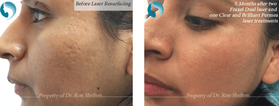 Acne Scar Treatments Nyc Scar Reduction By Dr Ron Shelton