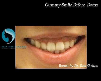 before botox gummy smile
