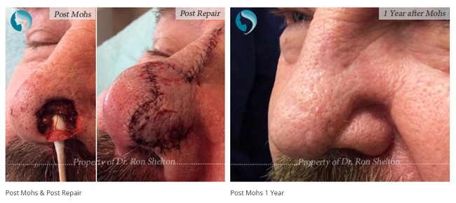 mohs NYC surgery by Dr Ron Shelton