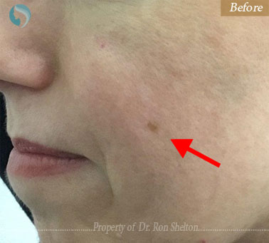 before treatment for brown spot
