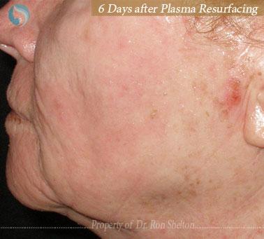 6 Days after Plasma Resurfacing