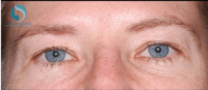 After Brow Lift with Botox