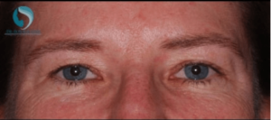 before brow lift with botox