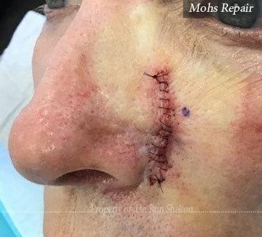 Mohs Repair in the cheek
