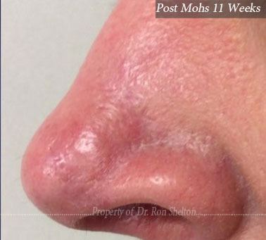 Post Mohs 11 Months on nose