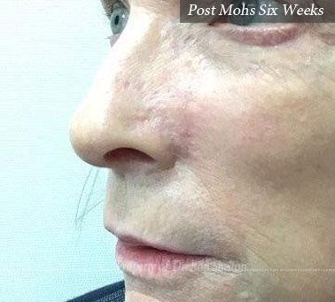 Post Mohs 6 Weeks