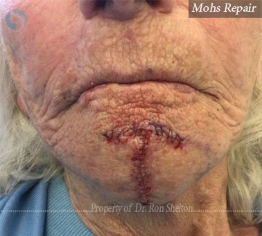 Mohs Repair on the chin