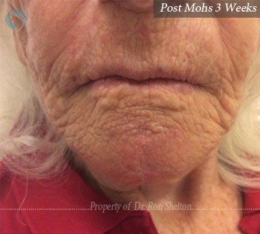 Post Mohs 3 Weeks on chin