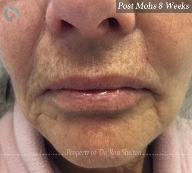 Post Mohs 8 Weeks on Lip