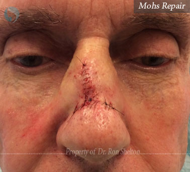 Mohs Repair