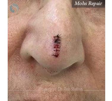 Mohs Repair on nose