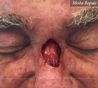 Post Mohs by Dr Ron Shelton