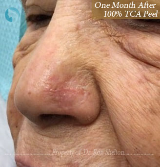 After Scar Removal