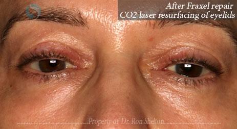 After Fraxel repair CO2 laser resurfacing of eyelids