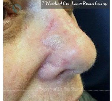 7 Weeks after Laser Resurfacing