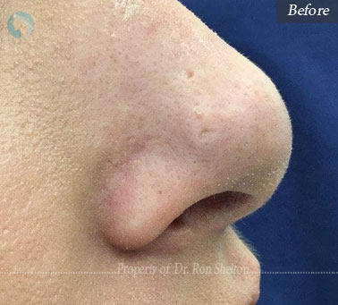 Before laser resurfacing on the nose