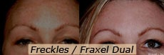 Fraxel Dual for Freckles