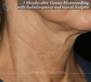 3 months after Genius Microneedling with Radiofrequency and topical Sculptra
