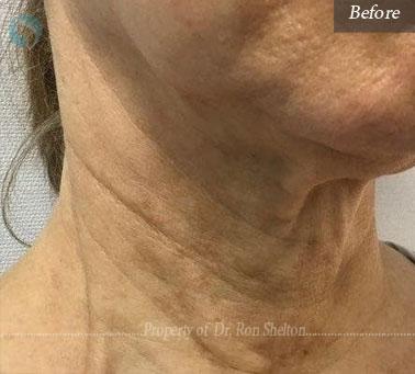 Before infini microneedling for techneck