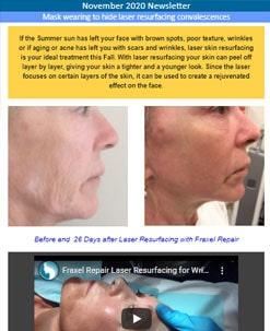 Mask wearing to hide laser resurfacing convalescences
