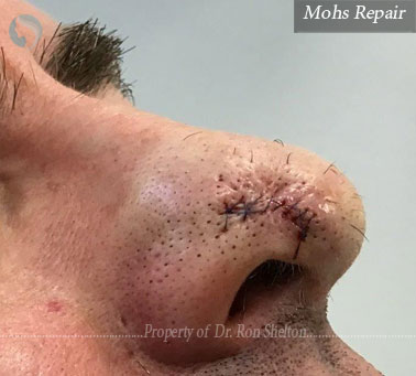 Mohs Repair on the nose
