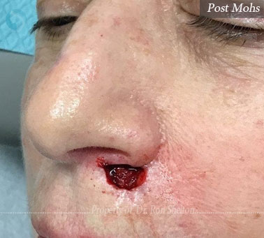 Mohs surgery on nose