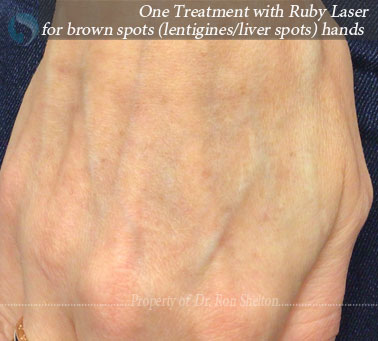 After One Treatment with Ruby Laser for brown spots (lentigines/liver spots) hands
