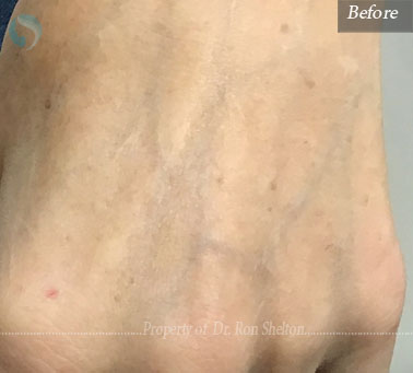 Liver spots Before Ruby Laser