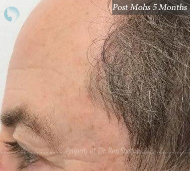 Post Mohs 5 months on temples