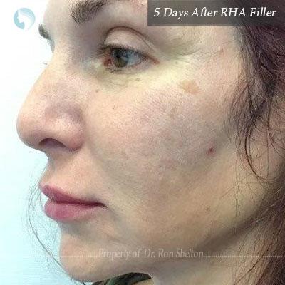 RHA 4 to cheeks, RHA 3 smile folds and chin and RHA2 to very superficial vertical sleep creases on cheeks